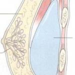 Protesi seno sotto il muscolo