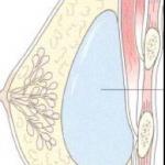 Protesi seno sotto la ghiandola mammaria