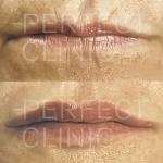 Aumento labbra con grasso prima e dopo