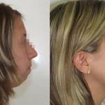Difetto della occlusione prima e dopo