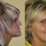 Grande e asimmetrica mascella inferiore prima e dopo