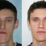Grande mascella inferiore prima e dopo