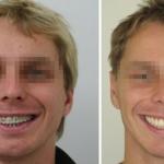 Mandibola asimmetrica prima e dopo