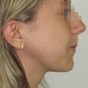 Operaziono maxillo-facciale