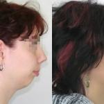 Piccola mascella inferiore, prognatismo prima e dopo