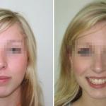 Prognatismo prima e dopo