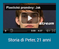 video-viso-peter